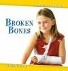 Broken Bones - Elaine Landau