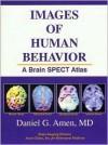Images of Human Behavior: A Brain SPECT Atlas - Daniel G. Amen