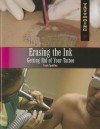 Erasing the Ink: Getting Rid of Your Tattoo - Frank Spalding