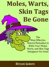 Moles, Warts, Skin Tags Be Gone: The Most Effective Natural Remedies to Make Your Moles, Warts, and Skin Tags Disappear For Good [Mole Removal, Wart Removal, Skin Tag Removal] - Bryan James