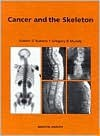 Cancer and the Skeleton - ROBERT RUBENS, Gregory R. Mundy