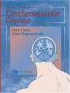 Current Review of Cerebrovascular Disease - Julien Bogousslavsky