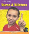 Burns & Blisters - Angela Royston