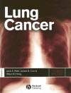 Lung Cancer - Jack A. Roth, James D. Cox, Waun Ki Hong