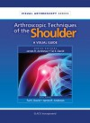 Arthrscopic Techniques of the Shoulder: A Visual Guide - Tal David, Tal David, James Andrews