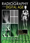 Radiography in the Digital Age: Physics - Exposure - Radiation Biology - Quinn B. Carroll