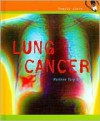 Lung Cancer - Marlene Targ Brill