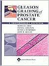 Gleason Grading of Prostate Cancer: A Contemporary Approach - Mahul B. Amin, David J. Grignon, Peter A. Humphrey, John R. Srigley