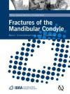 Fractures of the Mandibular Condyle: Basic Considerations and Treatment - Johannes Kleinheinz, Christopher Meyer, Christophe Meyer