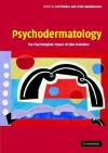 Psychodermatology: The Psychological Impact of Skin Disorders - Carl Walker