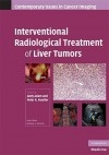 Interventional Radiological Treatment of Liver Tumors - Andy Adam, Peter R. Mueller