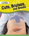 Cuts, Bruises, And Breaks (How's Your Health?) - Angela Royston