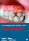 Self Assessment Picture Tests in Dentistry: Oral Medicine - Lamey, Philip-John Lamey