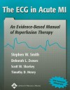 The ECG in Acute MI: An Evidence-Based Manual of Reperfusion Therapy - Stephen W. Smith, Deborah L. Zvosec, Timothy D. Henry, Scott W. Sharkey