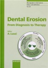 Dental Erosion - Adrian Lussi