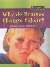 Why Do Bruises Change Colour? (Body Matters) - Angela Royston
