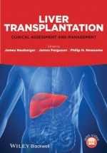 Liver Transplantation: Clinical Assessment and Management - James Neuberger, James Ferguson, Philip N. Newsome