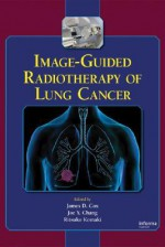 Image-Guided Radiotherapy of Lung Cancer - James D. Cox