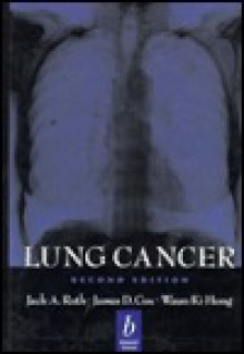 Lung Cancer - Jack A. Roth