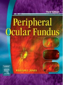 Peripheral Ocular Fundus - William L. Jones